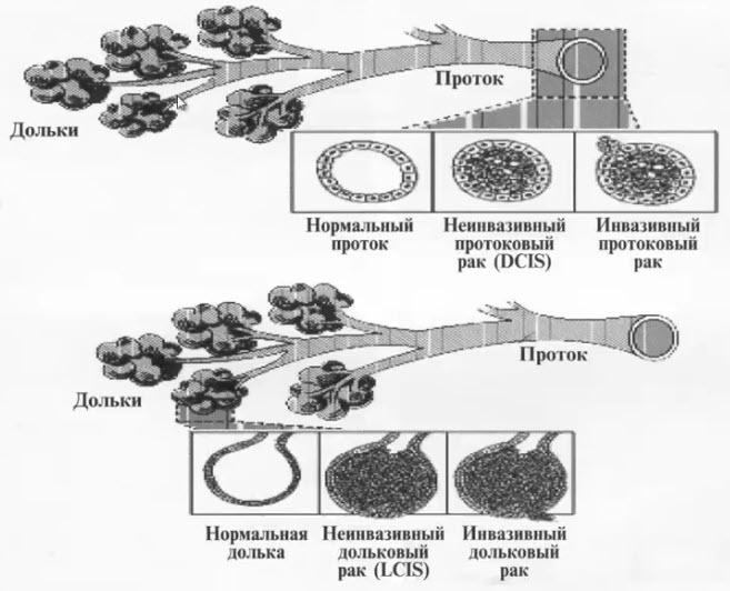 Схема развития внутрипротокового рака и долькового рака молочной железы
