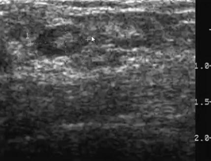 Интрамаммарный лимфатический узел