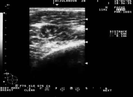 Аксиллярный лимфоузел при опухолевом образовании в МЖ с эхопризнаками малигнизации