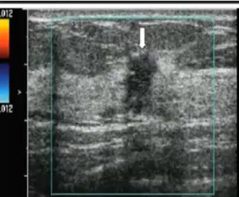 Инфильтрирующая дольковая карцинома правой МЖ женщины 37 лет.