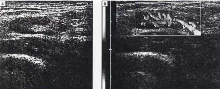 Дифференциальная диагностика: лимфаденит