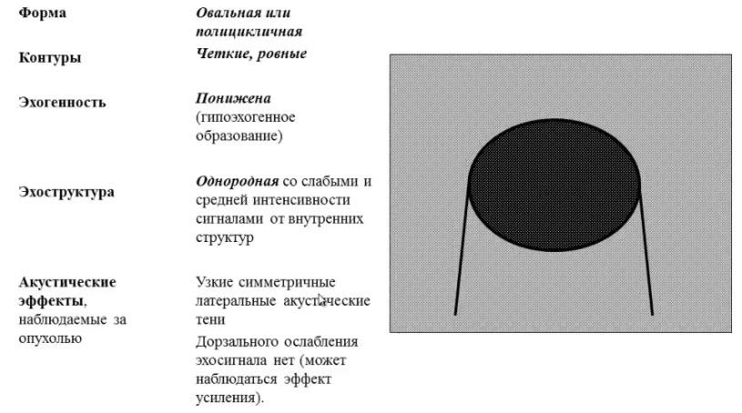 Схема эхопризнаков типичной фиброаденомы