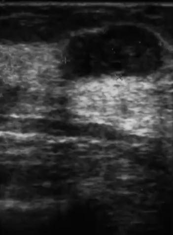 УЗ-характеристика крупной фиброаденомы