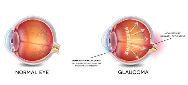 Миф#1. Инъекционный атропин противопоказан при глаукомеИнъекционный атропин противопоказан при глаукоме