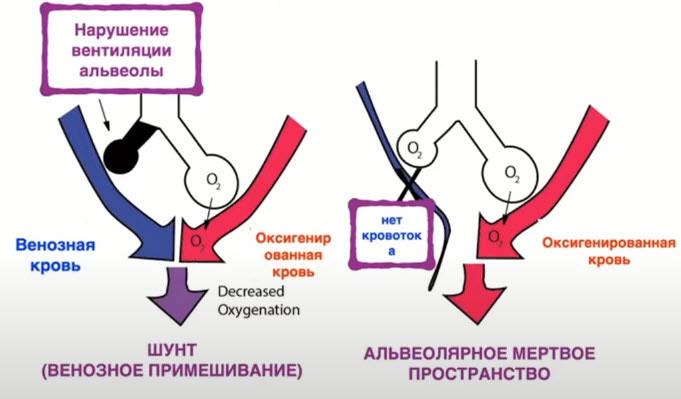 Вентиляционно-перфузионные нарушения