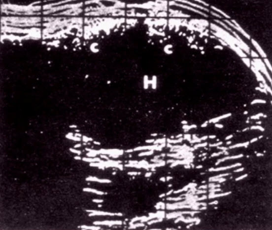 1974 - впервые выполнено УЗИ органов мошонки