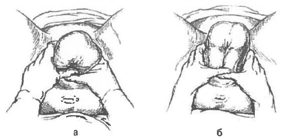 Рисунок 1. Ручное пособие при чисто ягодичном предлежании по методу Цовьянова