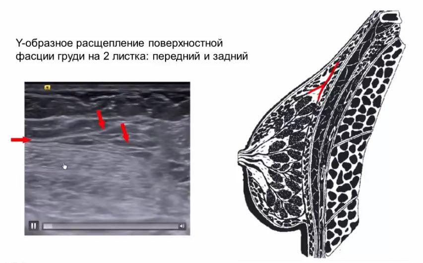 Связки Купера в хирургическом понимании термина (lig. suspensorium mammae)