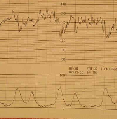 Вариабельность сердечного ритма - амплитуда - частота