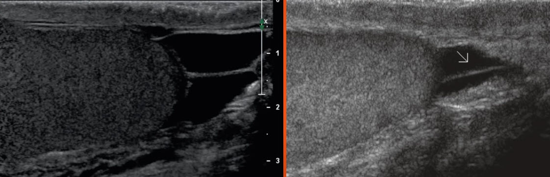Нормальная анатомия яичка lig. gubernaculum testis