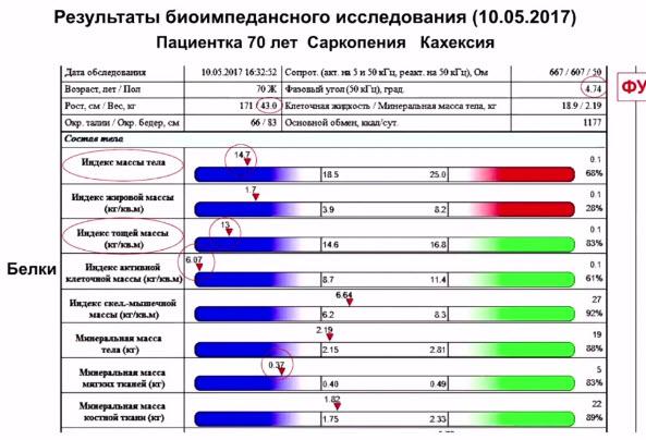 Результаты биоимпедансного исследования (10.05.2017). Пациентка 70 лет. Саркопения, кахексия
