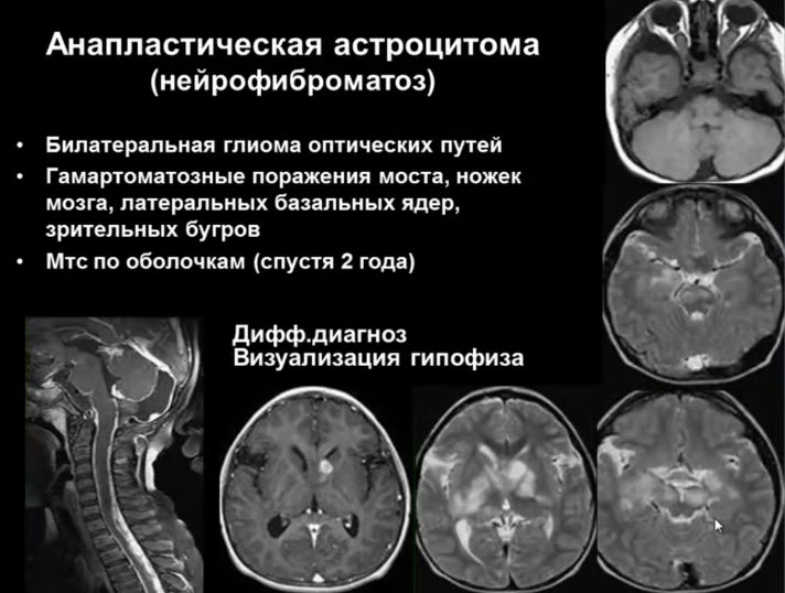 Анапластическая астроцитома (нейрофиброматоз)