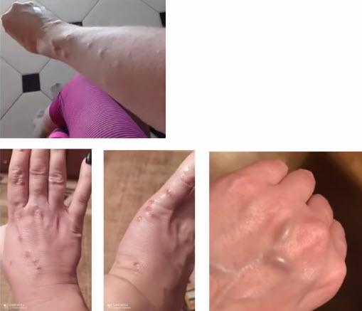 Папуловезикулезная сыпь и венозные аневризмы (варикоз) при постковиде
