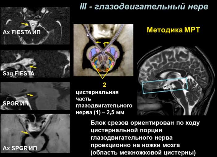 III - глазодвигательный нерв