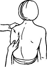 Рис. 21. Прием «проникновение» в подлопаточную область (сидя)