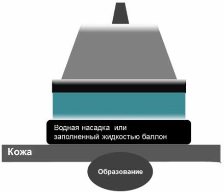 Использование водной насадки для УЗИ внутрикожных или связанных с кожей образований