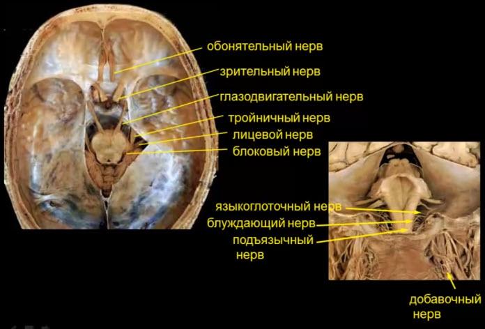 Поражение III III IV V VI VII VIII IX XI XII черепных нервов