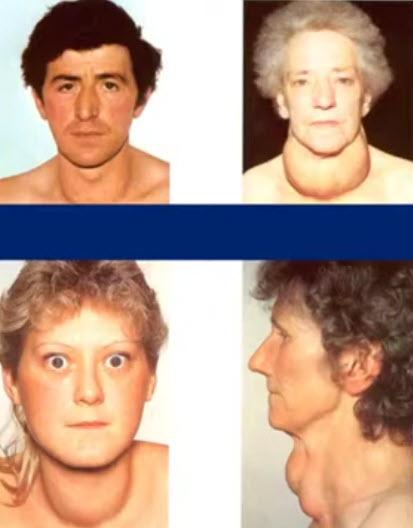 Узловой зоб или узлы в щитовидной железе