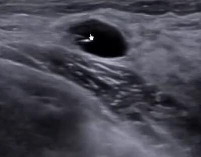 Киста, образовавшаяся из двух слившихся кист