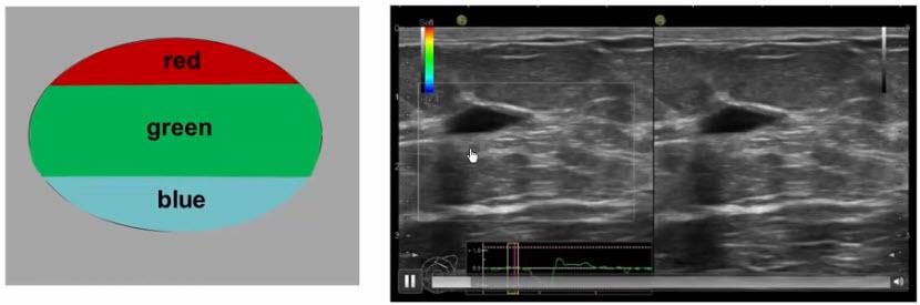 Эластографический признаки кисты: RGB-симптом