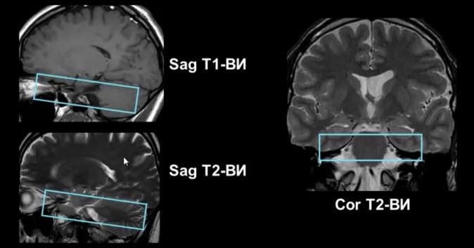 Методика MPT тройничного нерва