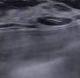 Послойное строение эхографического изображения молочной железы