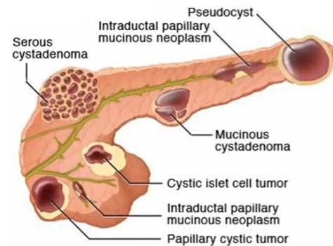 Классификация кистозных образований поджелудочной железы