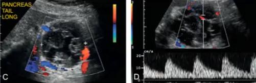 C, D - артериальный кровоток во внутренних перегородках и в стенке образований