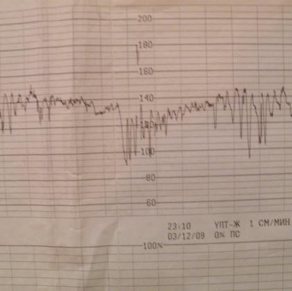Высокоосцилляторный с плавающей базальной частотой