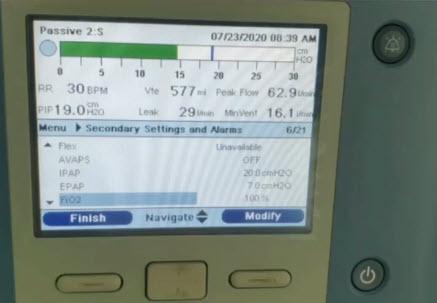 НИВЛ в режиме S (=PS) при нарушениях биомеханики