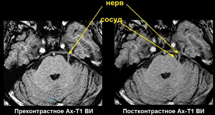 V - тройничный нерв. Анатомо-топографические соотношения тройничного нерва и сосуда в норме