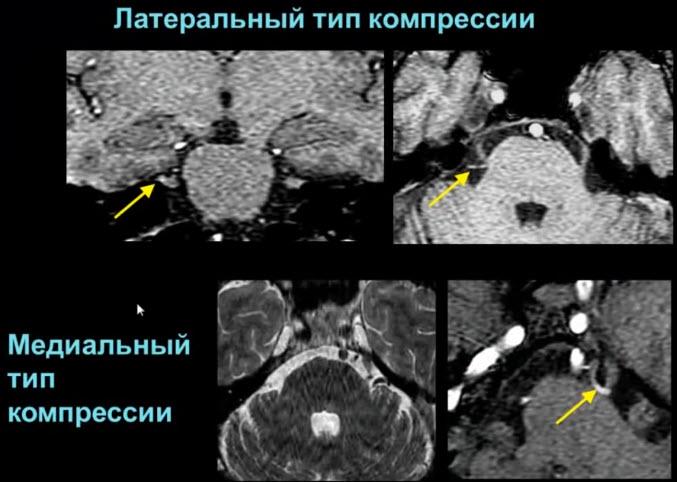 V - тройничный нерв. Латеральный тип компрессии