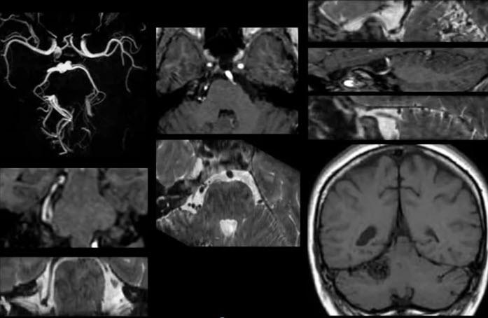 Тройничный нерв. ABM