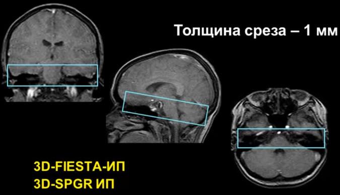Изучение структур цистернальной части черепных нервов