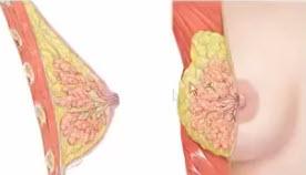 Анатомически молочная железа представляет собой сложный альвеолярно-трубчатый орган, состоящий из нескольких долей