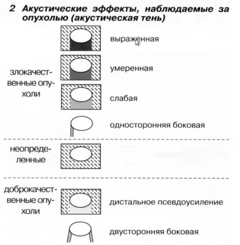 Ультразвуковые критерии опухолей молочной железы