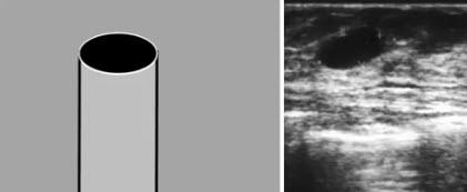 Типичные признаки жидкость содержащих образований