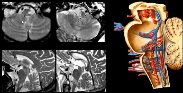 Тройничный нерв. Инфаркт продолговатого мозга (в месте расположения ядер V)