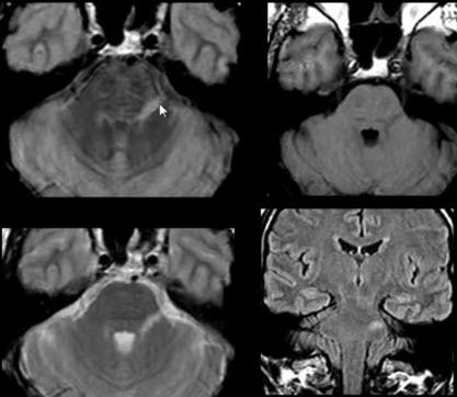 Тройничный нерв. Рассеянный склероз