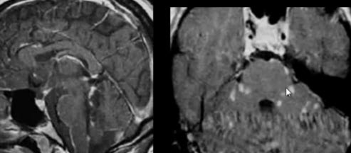 Тройничный нерв. Саркоидоз