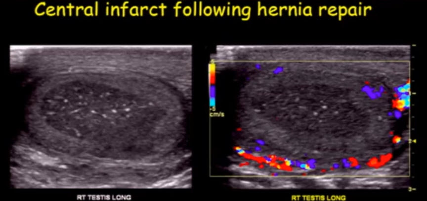 Центральный инфаркт яичка после герниопластики