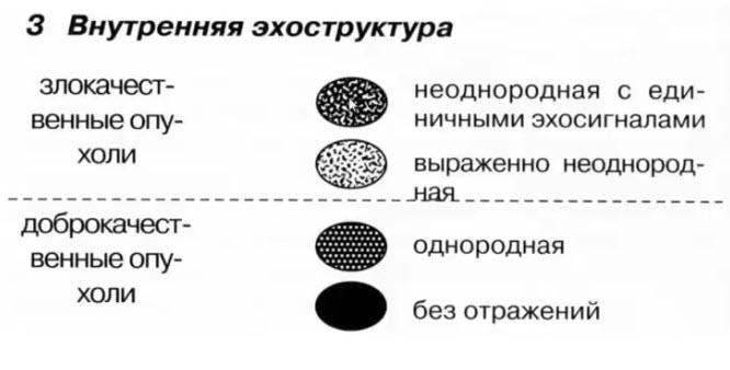 Ультразвуковые критерии опухолей молочной железы. 3 Внутренняя эхоструктура