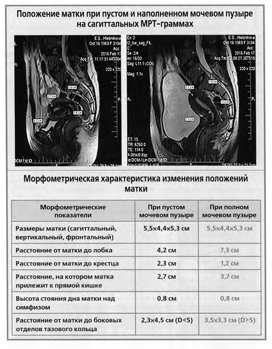 Положение матки при пустом и наполненном мочевом пузыре на сагиттальных МРТ-граммах