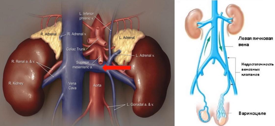Синдром Щелкунчика (аорто-мезентериальный пинцет)