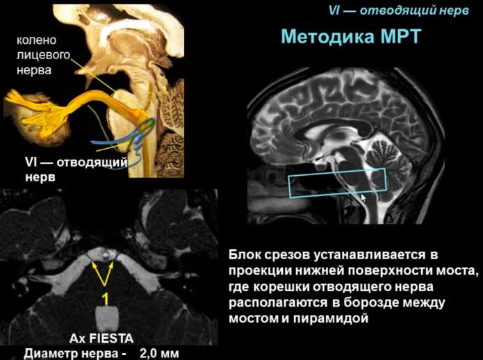 VI — отводящий нерв. Методика МРТ