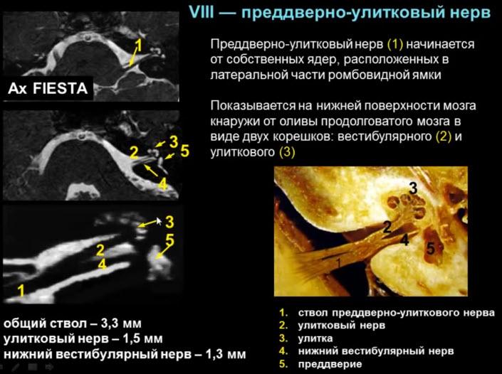 VIII — преддверно-улитковый нерв