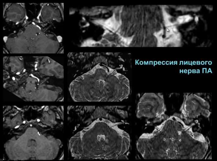 Компрессия лицевого нерва ПА