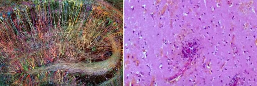 Нейросеть здорового человека и ее изменения при ковидном энцефаломиелите