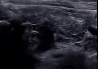 Аутоиммунный тиреоидит (АИТ)