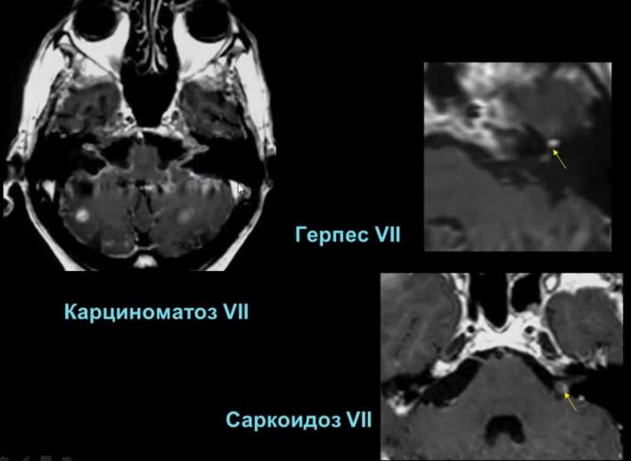 Саркоидоз VII, карциноматоз VII, герпес VII